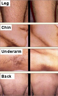 Laser Hair Removal The Caudle Center Cosmetic Surgery Wellness Aesthetics